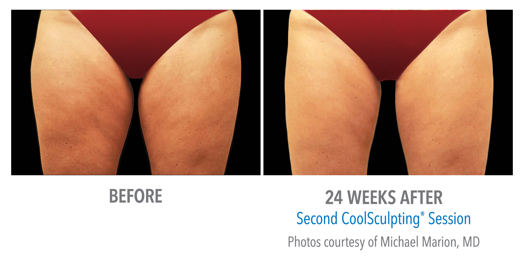 Atlanta Coolsculpting for thighs before and after