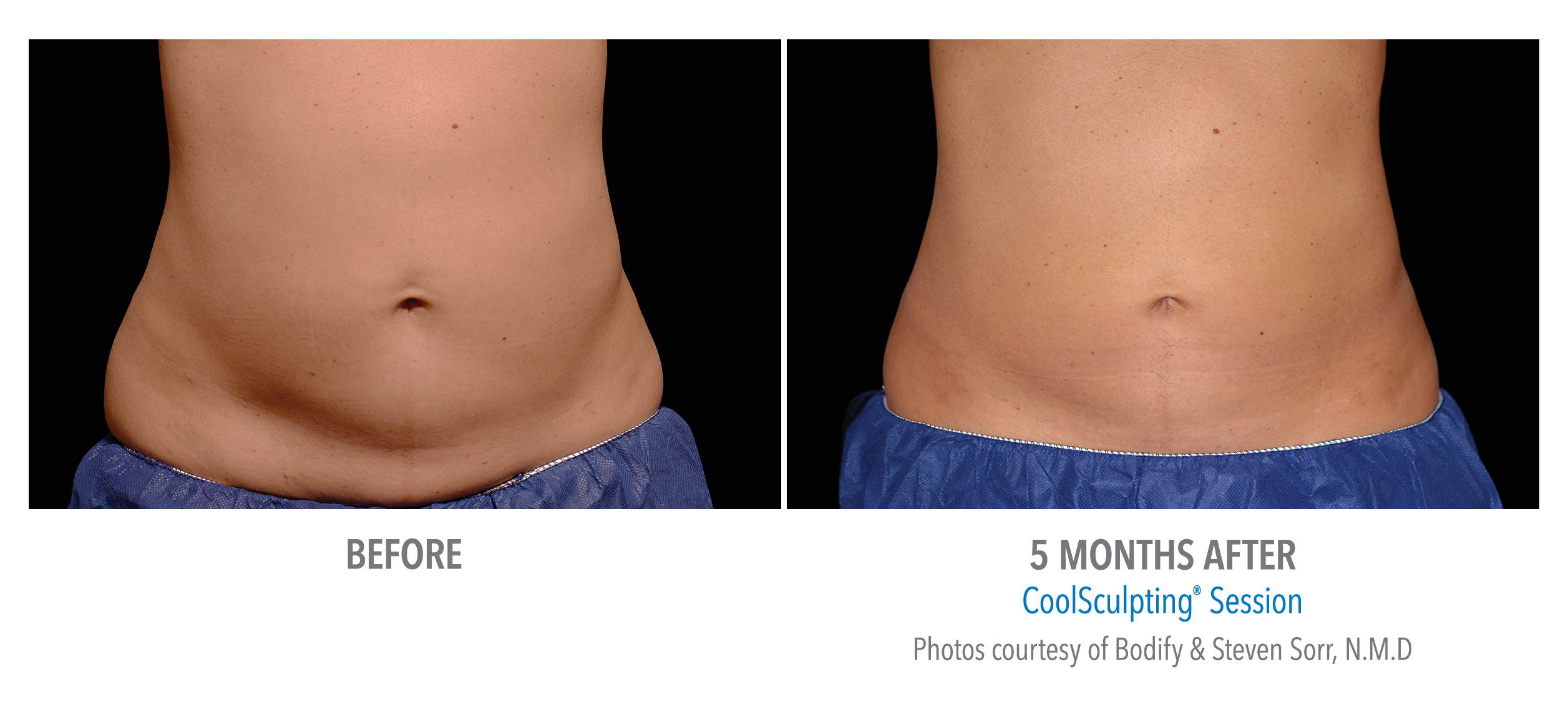 Coolsculpting before and after on abdomen - Dr. Alderman Atlanta