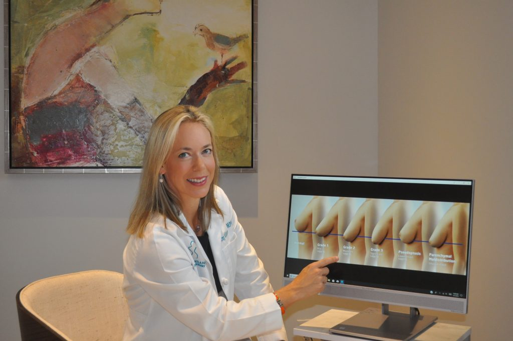 Atlanta surgeon Amy Alderman, MD reviewing degrees of breast ptosis