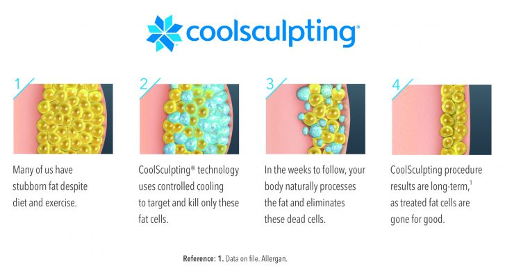 Coosculpting for Atlanta and Alpharetta patients