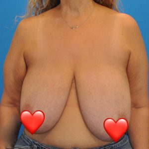 breast-reduction--5120